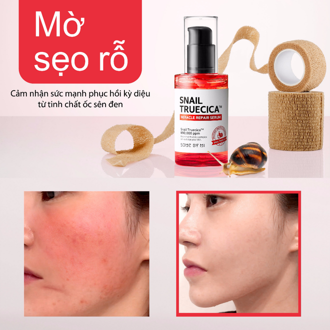 Cong dung cua tinh chat oc sen tri seo mun Some By Mi Snail Truecica Miracle Repair Serum